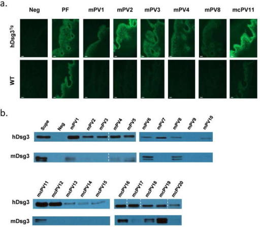 Sera from mPV patients preferentially recognize hDsg3. Sera from well characterized mPV and mcPV patients were tested by indirect IF (a) using WT and hDsg3Tg mucosa with anti-human IgG4 FITC as the secondary antibody. Healthy control sera (Neg) and pemphigus foliaceus (PF) sera are included as negative and positive controls, respectively. Bar = 25um. (b) Immunoprecipitation was performed using either recombinant his tagged hDsg3 or mDsg3 and patient sera. Immunoprecipitated hDsg3 or mDsg3 was detected by anti-His HRP. All detected bands ran at the expected size of approximately 77kDa. Noncontiguous lanes run on the same gel are indicated by a white dashed line.