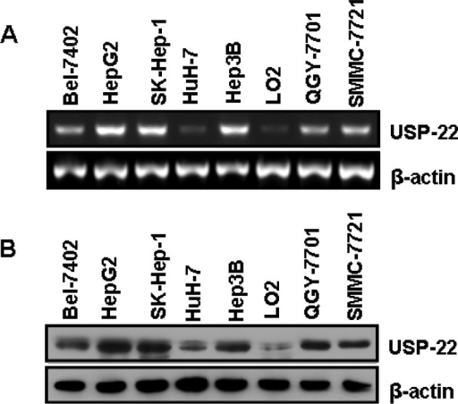 USP22 expression in HCC tissues and cell lines(A) Semi-quantitative RT-PCR analysis of USP22 mRNA expression in seven HCC cell lines (Bel-7402, HepG2, SK-Hep-1, HuH-7, Hep3B, QGY-7701, and SMMC-7721) and a normal hepatic cell line (LO2); (B) Western blot analysis of USP22 protein expression in seven HCC cell lines (Bel-7402, HepG2, SK-Hep-1, HuH-7, Hep3B, QGY-7701, and SMMC-7721) and a normal hepatic cell line (LO2). β-actin was used as internal control for RT-PCR and Western blot.