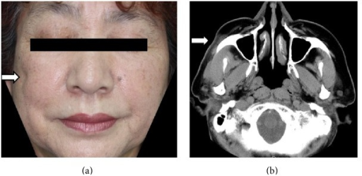 (a) Clinical manifestation at admission. (b) Axial computed tomography images, with soft-tissue settings, showing atrophy of subcutaneous fat on the right side of the face.