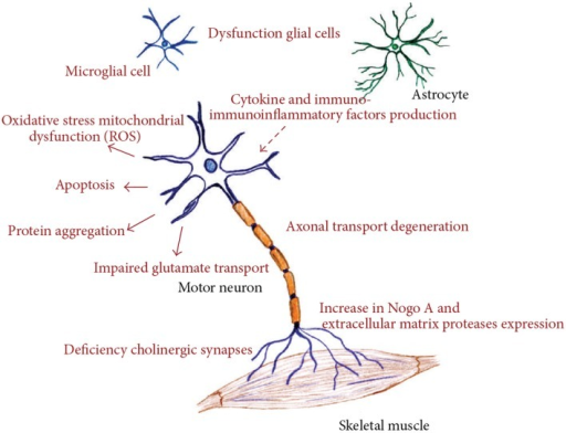 Different molecular pathways altered in amyotrophic lateral sclerosis, all of these deregulated mechanisms prompt motor neuron death. (Figure taken from: Calvo et al., 2014).