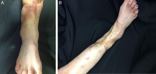 Right lower extremity post-fat transfer 3 sessions two-view.
