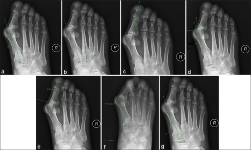 The hallux valgus angle is formed by the longitudinal axis of the first metatarsal and the longitudinal axis of the proximal phalanx (a). The intermetatarsal angle is the angle between the extension longitudinal axis of the first and second metatarsals (b). The interphalangeal angle is the angle between the longitudinal axis of the proximal phalange and the longitudinal axis of the distal phalange (c). The proximal articular set angle (PASA) is determined as follows: first, a line is drawn between the medial and lateral points of the articular surface. This is followed by drawing a vertical line through the center. This line and the longitudinal axis of the first metatarsal form the PASA (d). The distal articular set angle defines the relationship of the proximal articular surface of the proximal phalange to the longitudinal axis of the proximal phalange (e). The medial eminence is measured by drawing a line along the medial diaphyseal border of the first metatarsal. A perpendicular line is then drawn at the widest extent of the medial eminence (f). Metatarsocuneiform angle is formed by the intersection of the longitudinal axes of the first metatarsals and the proximal articular surface of the first metatarsal. Image is a weight-bearing AP view of the foot (g).
