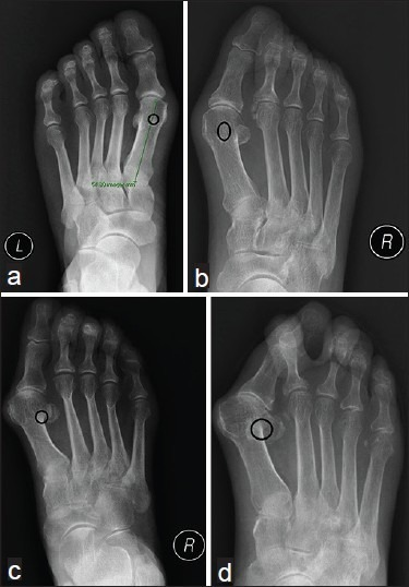 Classification of the tibial sesamoid position (TSP). (a) The sesamoid stays in situ or not beyond 25% of the central axis of the first metatarsal. (b) The sesamoid is deviated laterally beyond 25%–75% of the central axis of the first metatarsal [Figure 9b]. (c) The sesamoid is deviated laterally beyond 75% of the central axis of the first metatarsal but not beyond 25% of the fibular border of the first metatarsal. (d) The sesamoid is deviated laterally beyond 25% or more of the fibular border of the first metatarsal. Images are of a weight-bearing AP view of the foot.