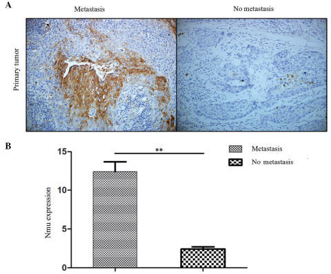 (A) Representative images of IHC staining for Nmu protien in human primary tumors with metastasis and without metastasis (Magnification, ×200). (B) IHC index (intensity x percentage of tumor cells) showed that the expression of Nmu in the primary tumor tissues with metastasis was higher, compared with the tissues without metastasis (**P<0.01). Nmu, neuromedin U IHC, immunohistochemical.