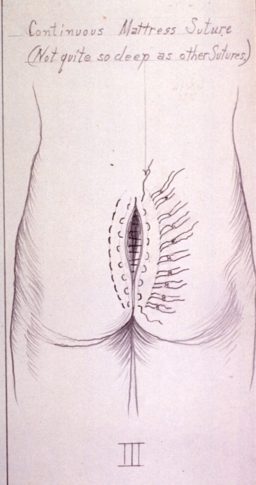 <p>Illustration showing placement of second set of mattress sutures for closing incision after removal of a cyst.</p>