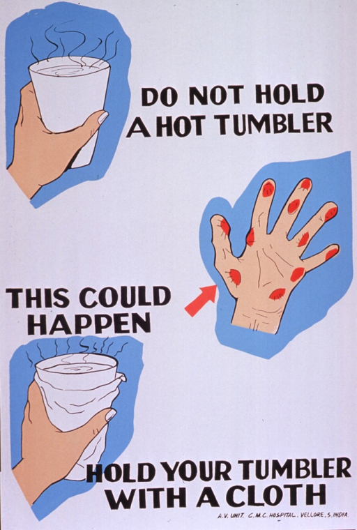 <p>Predominantly white poster with black lettering.  Text dispersed throughout poster.  Visual images are color illustrations of a bare hand holding a glass filled with a steaming hot liquid, a burned hand, and a hand holding a wrapped glass of hot liquid.  Publisher information in lower right corner.</p>