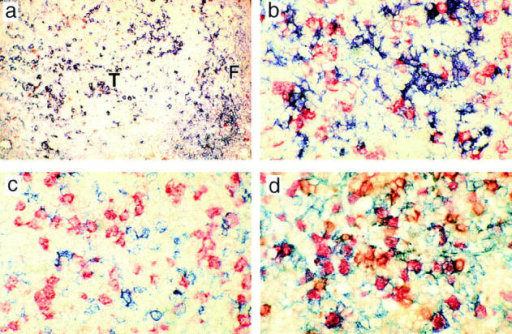 Histological localization of cells proliferating within  the T zone (T) of lymph nodes  draining MMTV(SW) infection.  Cells incorporating BrdU during a 2.5-h pulse are identified  by red staining nuclei in all panels. a (×100) shows MHC class  II expression (blue) 2 d after challenge with MMTV(SW); large  interdigitating cells are seen in  the T zone where very few cells  are proliferating. The smaller  class II+ cells at the edge of the  panel are follicular (F) B cells. b–d  (×500) show the T zone from a  lymph node taken 3 d after infection with MMTV(SW). At  this stage there are large numbers  of BrdU+ cells in that area.  These are associated with IDC  stained blue for MHC class II  expression in b; they are not obviously associated with B cells  stained blue for B220 expression  in c and they are largely Vβ6+ as  indicated by blue staining in d  where recirculating IgD+ B cells  are stained brown.