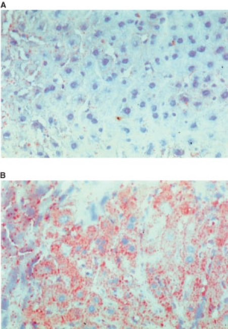 Histology of mouse liver. Fresh frozen tissue from five mice per group was sectioned on a cryostat and stained with Oil Red O. There was marked intracytoplasmic lipid accumulation in the liver from LMF-treated mice (B) but little in the vehicle-treated mice (A). Hepatocytes from all zones of the hepatic lobule were affected equally.