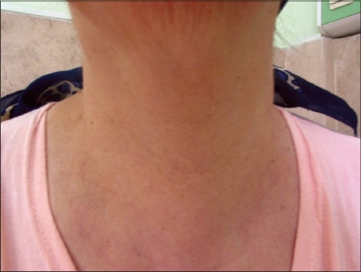 Anterior view of neck.