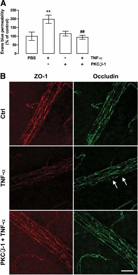 PKCζI-1 prevents TNF-α–induced retinal vascular permeability in vivo. Animals' eyes were injected with PBS with 0.1% BSA, TNF-α (10 ng); PKCζI-1 (280 ng); or with both PKCζI-1 and TNF-α. A: Evans blue leakage was evaluated 24 h after intravitreous injections. The results represent the mean ± SEM (n = 7–8 animals per group) and are expressed relative to control (Ctrl; PBS-injected eyes). **P < 0.01, significantly different from control; ##P < 0.01, significantly different from TNF-α, as determined by ANOVA followed by Bonferroni post hoc test. B: PKCζI-1 prevents the alterations in tight junction proteins induced by TNF-α in vivo. Whole retinas were immunolabeled for ZO-1 and occludin 4 h after injection. Images were obtained on a Leica TCS SP2 AOBS confocal microscope and are presented as a maximum projection. Arrows indicate loss and/or discontinuous cell border staining. Scale bar, 25 μm. (A high-quality digital representation of this figure is available in the online issue.)