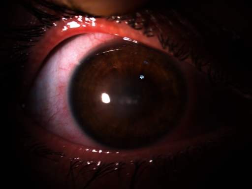 f2-cln_66p1509:Contact-lens-related corneal ulcer caused ...
