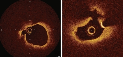 Optical coherence tomography image of ruptured plaque (arrows) with a thin fibrous cap at the site of an acute coronary syndrome culprit lesion.