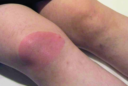 Erythema migrans caused by Borrelia spielmanii.