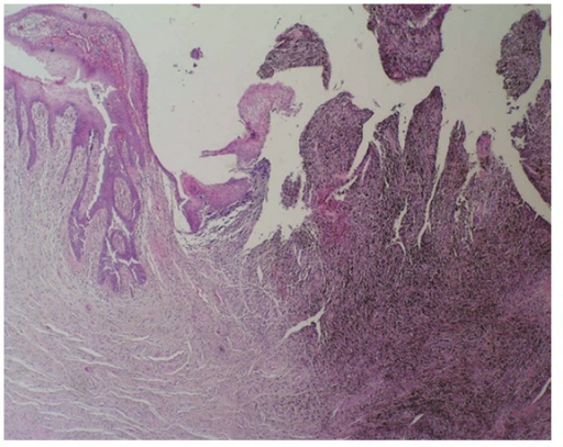 Polypoid, partially ulcerated melanoma of the female urethra (haematoxylin and eosin stain ×40).