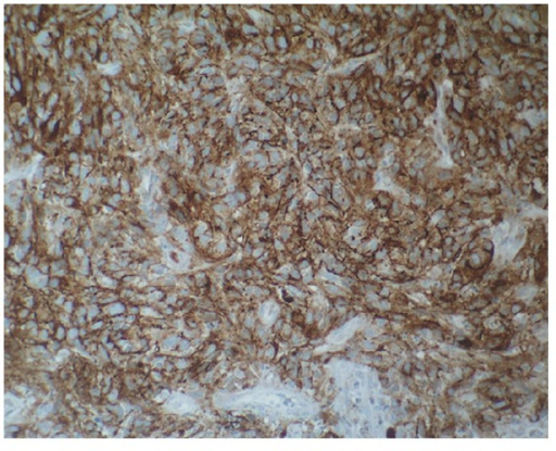 HMB-45 expression in melanoma cells (the immunohistochemical stain HMB-45, MSIP ×200).