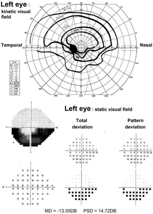 Visual Field Examination At Presentation Kinetic Upsi Open I