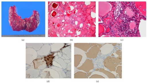 (a) Gross pathological findings of the excised thyroid gland. (b, c) H-E staining of the thyroid gland in low-power (b) and high-power fields (c). Several sizes of follicle were regularly lined with flattened follicular epithelium. The lumen was filled with colloid. Scattered disrupted follicles with enlarged epithelium and cytoplasmic vacuoles were observed (b). Macrophages had infiltrated and multinucleated giant cells were found in follicular lumen (c). Immunostaining with anti-KP-1 (CD68) antibody (d). Immunostaining with antithyroglobulin antibody (e).