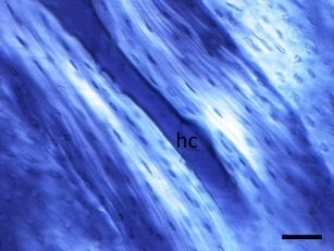 Polarized light microscopy of an osteon in a longitudinal section of cow femur. Bright areas indicate that collagen runs parallel to the plane of section. Note that osteocyte lacunae appear longer in the bright areas near the Haversian canal (hc) compared to the dark outer areas of the osteon. Scale bar = 50 μm