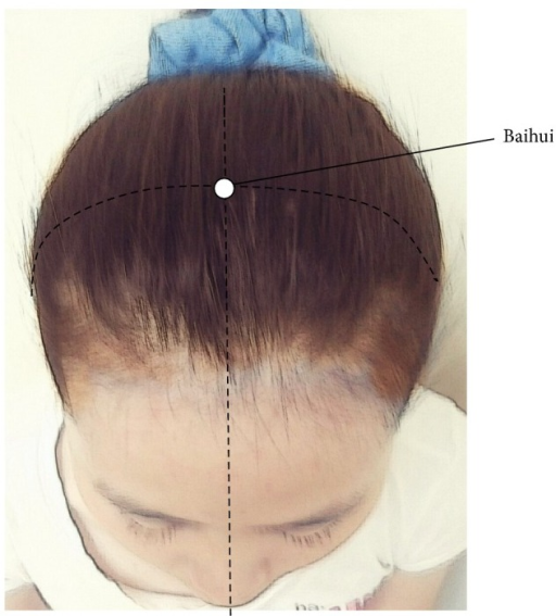 Acupoint (Baihui) selected for fatigue and depression in the study.