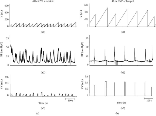 Representative cystometrogram recordings using continuous intravesical infusion of saline in conscious rats with an open outlet from a CYP-treated (48 hr) rat with vehicle ((a1)–(a3)) and a CYP-treated (48 hr) rat with Tempol (1 mM; (b1)–(b3)). ((a), (b)) Bladder function in a CYP-treated (48 hr) rat without Tempol (vehicle only; (a1)–(a3)) and in a CYP-treated (48 hr) rat with Tempol (1 mM in the drinking water; (b1)–(b3)) during continuous intravesical infusion of saline. Bladder function recordings in (a) and (b) are from different rats. Infused volume (IF, μL; (a1), (b1)), bladder pressure (BP, cm H2O; (a2), (b2)), and void volume (VV, mL; (a3), (b3)) with vehicle ((a1)–(a3)) and with Tempol treatment ((b1)–(b3)) are shown.