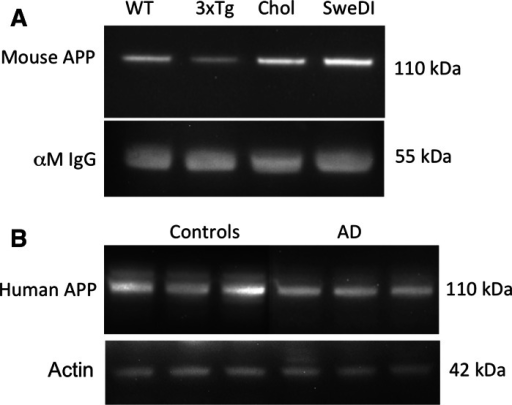 Western blot analysis of amyloid precursor protein (APP) immunoreactivity in mouse (a) or human (b) platelets. In mice, one single APP band was seen at approx. 110 kDa in wildtype (WT), triple transgenic (3xTg), cholesterol (Chol) or APP_SweDI (SweDI) mice. Loading control was performed using anti-mouse IgG showing a band at 55 kDa (a). In humans, 2 bands were visible one larger at approximately 130 kDa and a smaller at approximately 110/106 kDa (b). The larger 130 kDa band declined in Alzheimer's disease patients (AD) compared to controls (b). Actin at 42 kDa served as a loading control