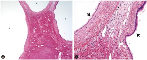 Microscopy findings of the resected specimen. Bile ducts were dilated and had thickened walls (asterisks). Ectasias result in a predisposition to repeated attacks of cholangitis with complications such as intrahepatic lithiasis, amyloidosis, and cholangiocarcinoma, but they were not present in this case. The lining epithelium (arrows) comprised columnar and cuboidal cells (hematoxylin and eosin stain, A: ×40, B: ×200).
