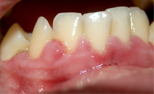Patient 1: Elevated red, pebbly lesions at the level of anterior mandibular teeth