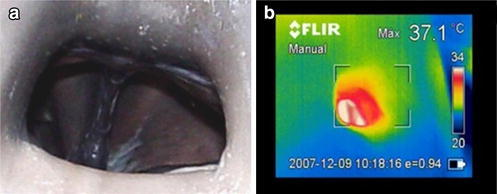 Blowhole of a bottlenose dolphin (Tursiops truncatus). Digital (a) and thermographic (b) images of the blowhole during voluntary breathing with the thermal camera placed perpendicularly to the longitudinal axis of the dolphin