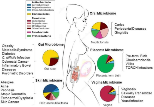 Taxonomic distribution, prevalence and abundance of microbial taxa that inhabit healthy human body sites as defined in the human microbiome projects (HMP). The colored rectangles denote phylum/class and genera. Clinical studies of the microbiome will help to elucidate the link between microbes and the promotion of a large number of diseases and pathological conditions as shown in the figure. The images were adapted from NIH HMP (http://www.hmpdacc.org/) and National Human Genome Research Institute (https://www.genome.gov/). TORCH, Toxoplasmosis, Oher infections (coxsackievirus, HIV, syphilis, etc), Rubella, Cytomegalovirus, Herpes simplex.