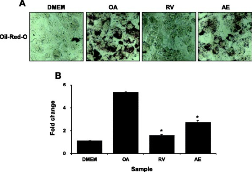 Effects of Aralia elata (Miq) Seem (AE) on steatosis in HepG2 cells stimulated with oleic acid (OA). a HepG2 cells were treated with 100 μg/mL AE. After treatment for 24 h, lipid accumulation was measured by staining with Oil-red-O. b Lipid accumulation in HepG2 cell was determined by ORO-based colorimetric assay. Results are the mean ± SEM. *p < 0.05 compared with the OA group. DMEM, control group; OA, oleic acid-treated group; AE, OA + Aralia elata (Miq) Seem-treated group; RV, OA+ resveratrol-treated group