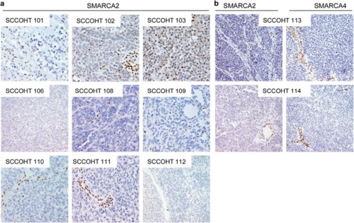 Immunohistochemistry for SMARCA2 and SMARCA4 in formalin-fixed paraffin-embedded small cell carcinoma of the ovary, hypercalcemic type cases. (a) SMARCA2 staining of the original small cell carcinoma of the ovary, hypercalcemic type cases previously described and stained for SMARCA4. Note the strong staining of stromal cell nuclei as internal control. (b) SMARCA2 and SMARCA4 staining for two new small cell carcinoma of the ovary, hypercalcemic type cases.