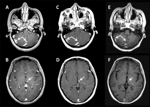 Brain MRI FindingsAxial T1 post-contrast MRI shows areas of concern and response to treatment at two representative slices at the time of diagnosis of leptomeningeal relapse (A and B), one month post-radiosurgery (C and D), and five months post-radiosurgery (E and F). Dual arrows (A, C, E) highlight an area of bulky cerebellar disease and leptomeningeal involvement. Single arrows (B, D, F) highlight an area of bulky subventricular disease.