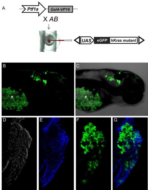 Targeted expression of eGFP-KRASmutant transgene in zebrafish pancreas(A) Schematic depiction of experimental design employing the Gal4-VP16/UAS system used to drive eGFP-KRASmutant transgene expression within the ptf1a expression domain. (B-C) Lateral view of larval zebrafish (5dpf) under transmitted and fluorescent illumination, showing expression pattern of eGFP-KRASmutant transgene in the hindbrain. Due to yolk autofluorescence (asterisk *), pancreatic expression of the eGFP-KRASmutant transgene is difficult to detect in intact embyos. (D-G) Confocal image of microdissected pancreas from 5 dpf larval fish, revealing the membrane localization of eGFP-KRASmutant protein. Blue pseudocolor indicates DAPI labeling.