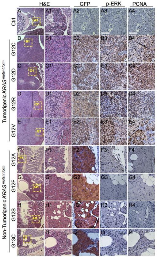Characterization of pancreatic tissue expressing tumorigenic and non-tumorigenic KRASmutant alleles(A) Pancreatic tissue from uninjected control ptf1a:Gal4-VP16 fish had histologically normal pancreas and no evidence of tumor formation in any organ. Control pancreatic tissue also displayed no labeling for eGFP and minimal labeling for p-ERK and PCNA. (B-E) Representative pancreatic tissue from fish injected with tumorigenic mutations G12C, G12D, G12R and G12V. Identical results were also observed for fish injected with G13D, Q61L, Q61R, and A146T (data not shown). Resulting tumors were uniformly positive for eGFP and showed strong labeling for p-ERK and PCNA. (F-I) Representative pancreatic tissue from fish injected with non-tumorigenic mutations G12A, G12F, G12S, and G13C. In spite of widespread expression of eGFP-KRASmutant transgenes, normal histology and minimal labeling for p-ERK and PCNA are observed. Regions outlined by dotted lines indicated areas depicted at higher magnification in adjacent images. Primary antibodies used for immunohistochemistry were rabbit anti-eGFP (Invitrogen, A11122, 1:400), rabbit anti-phospho-ERK (Cell Signaling Technology, 4370S, 1:400), and mouse anti-PCNA (DAKO, M0879, 1:400).