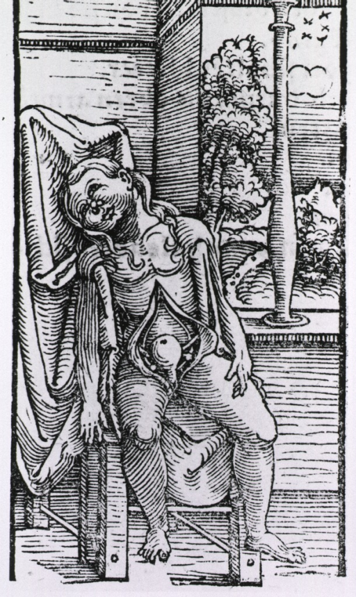 <p>Interior view: a nude female figure sitting on a chair; with her abdomen exposed for anatomical analysis.</p>