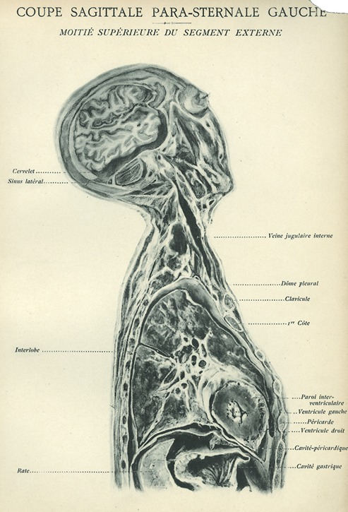 <p>Image of sagittal plane view of left side of human body showing segments of the head, neck, and thorax, including: cervelet, sinus lateral, interlobe, rate, veine jugulaire interne, dome pleural, clavicule, 1re cote, pario inter-ventriculaire, ventricule gauch, pericarde, ventricult droit, cavite-pericaridique, cavite gastrique. Issued in seven installments by the flamboyant Parisian surgeon Eugene-Louis Doyen (1859-1916), this atlas of 279 &quot;heliotyped&quot; photographic plates of cross-sectioned bodies was a radical departure from past practice. Atlas d'anatomie topographique.</p>