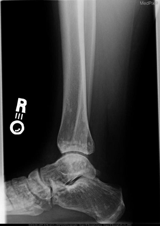 multiple asymptomatic enostoses grouped about the articular surfaces of the ankle and foot