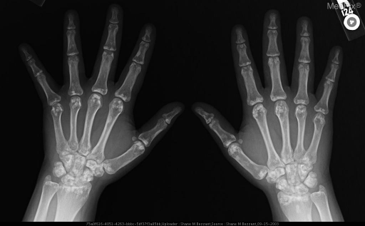 multiple asymptomatic enostoses grouped about the articular surfaces of the wrists and hands
