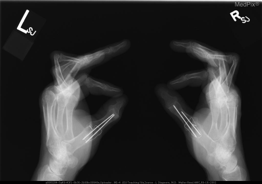 PA  and lateral radiographs of the hands and wrists show periarticular osteopenia. Subluxations, flexion deformities and joint space narrowing are present at the proximal interphalangeal joints and joint space narrowing at the intercarpal joints. Both first metacarpophalangeal joints are ankylosed with surgical pins traversing these joints.  Joint prostheses are present at the left 2nd and 3rd metacarpo-phalangeal joints and the right 2nd-5th metacarpophalangeal joints.