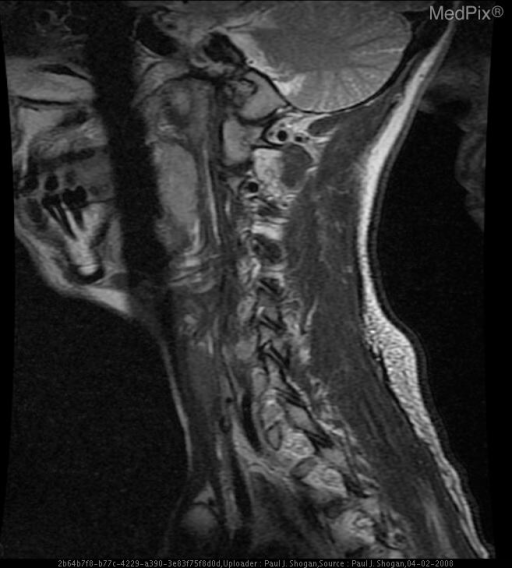 T2 weighted sagittal image of the left vertebral artery reveals normal T2 signal related flow void.
