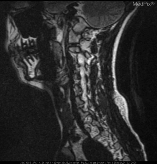 FIESTA 3D sagittal image of the right vertebral artery reveals loss of the normal T2 signal related flow void.