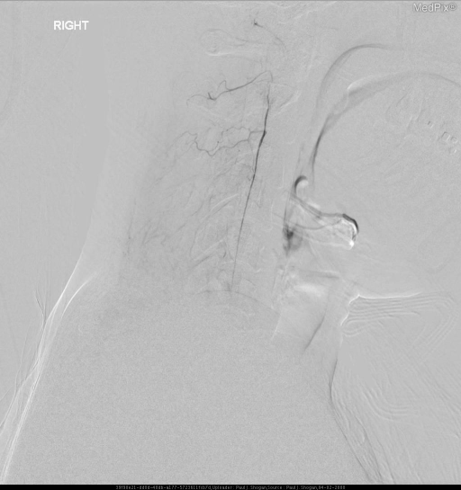 Selective catheterization of the right vertebral artery in late arterial phase, lateral view, demonstrates a hypoplastic right vertebral artery with distal occlusion of the right vertebral artery at the level of C1-2 junction with dilated muscular collaterals at the level of C1.