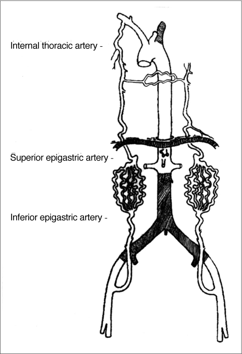 Schematic view of Fig. 1. In a patient with total occlusion of the infrarenal aorta and left subclavian artery, the internal thoracic artery provided total collateral perfusion to both lower extremities via the superior and inferior epigastric artery to the external iliac artery. The internal thoracic artery also provided perfusion to the opposing side via mediastinal collaterals.