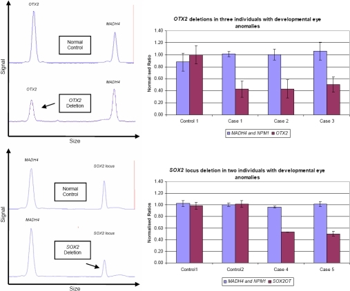 The use of MLGA to detect OTX2 and SOX2 deletions in cases 1-5. Left: GeneMapper® traces demonstrate the reduced signal from an OTX2 deletion (upper) and a SOX2 locus deletion (lower). Right: Bar graphs of normalized peak area ratios show reduced copy numbers of OTX2 (upper) and SOX2 locus (lower) in individuals with deletions when compared to normal controls. A normalized ratio of 0.5 indicates a deletion of one copy of the targeted loci while a ratio of 1 indicates a normal copy number.