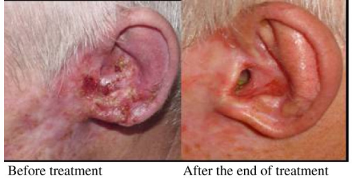 Patients with SCSC grade I previously treated with surgery, topic 5-FU and radiotherapy. He presented an extensive tumor lesion in the left ear and external auditory conduit and with indication of ear and external auditory conduit resection and reconstruction. After IFN combination administration a complete clinical response was observed that was sustained for 24 months.