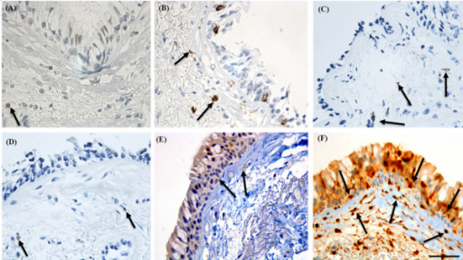 Bronchial biopsy specimen from a COPD current smoker stained for immune and inflammatory cell markers compared to S100A4. Black arrows showing cells positive for: (A) CD4 (anti-CD4 monoclonal anti-body); (B) CD8 (anti-CD8 monoclonal antibody); (C) CD68 (anti-CD68 monoclonal antibody; macrophage and mature fibroblast marker); (D) neutrophil elastase (anti-neutrophil elastase monoclonal antibody; neutrophil marker); (E) CD11c (anti-CD11c monoclonal antibody; dendritic cell/inflammatory cell marker); compared to (F) S100A4 (anti-S100A4 polyclonal antibody; mesenchymal marker) stained cells, in the basal epithelium and reticular basement membrane (Rbm). There are many more S100A4 positive cells in the basal epithelium and Rbm compared to cells stained for any inflammatory cell marker. Most of the cells positive for inflammatory cell markers are in the lamina propria below the Rbm. Original magnifications, × 630. Scale bar = 50 μm.