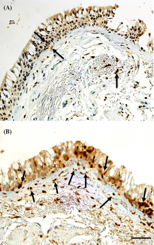 Bronchial biopsy specimen from a COPD current smoker stained for S100 compared to S100A4. Black arrows showing cells stained for: (A) S100 (anti-S100 polyclonal antibody; Langerhans cell marker); compared to (B) S100A4 (anti-S100A4 polyclonal antibody; mesenchymal marker). Original magnifications, × 400. Scale bar = 50 μm.