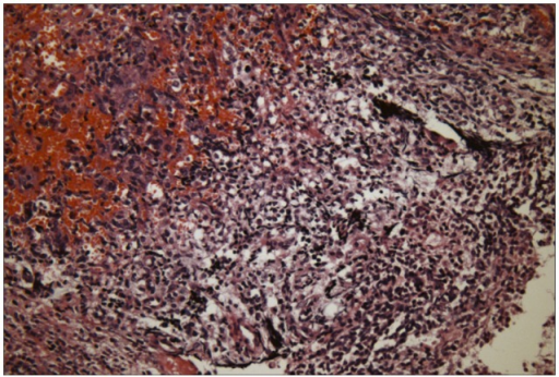 Histology of spinal surgical specimen shows small round cell tumor with extensive necrosis consistent with metastatic rhabdoid tumor (hematoxylin-eosin stain, ×200).