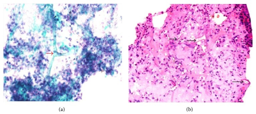 Bronchoalveolar lavage specimen showing broad, irregular, aseptate hyphae of Mucor with wide angled branching (arrow-heads) in a neutrophil-rich inflammatory background. (a) Papanicolaou (smear) ×600 and (b) haematoxylin and eosin (cell block) ×600.
