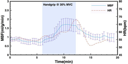 MBF (blue) and HR (red) as a function of time for one experimental subject. The shaded area represents duration of handgrip stress at 30% of maximum voluntary contraction.